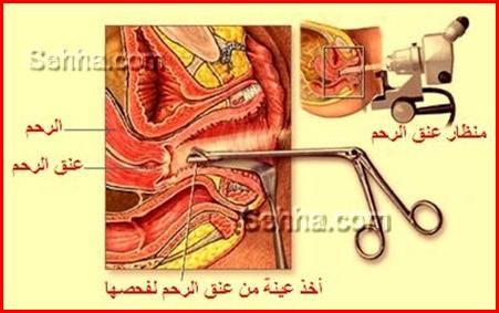 عملية منظار الرحم